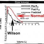 3-rbw-asthma-flowvolume-graph-20090923-rednormal-blackwilson